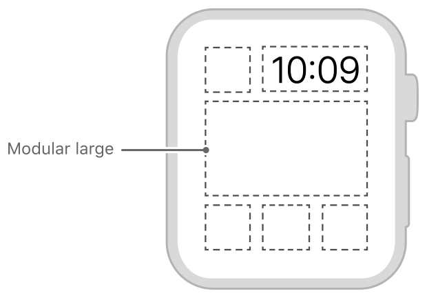 Diagram showing the size and position of a modular large complication.